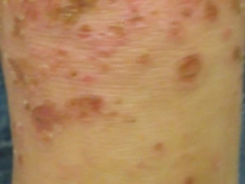 水を持った湿疹から赤いブツブツ、掻いてしまうとひどくなります