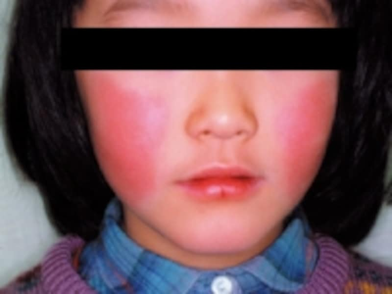 りんご病の症状写真で、頬が赤くなります(出典:国立感染症研究所感染症情報センター感染症発生動向調査週報より)