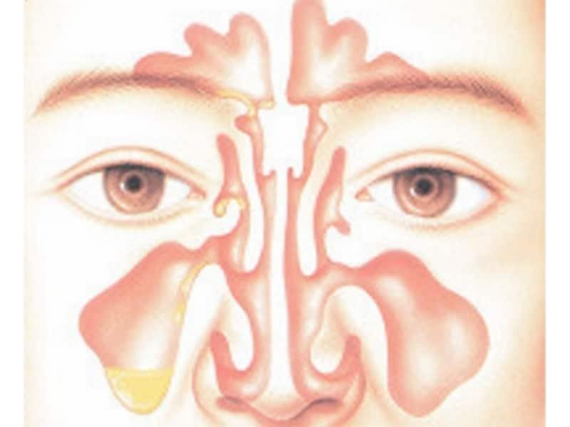 副鼻腔炎の原因・症状・診断・治療
