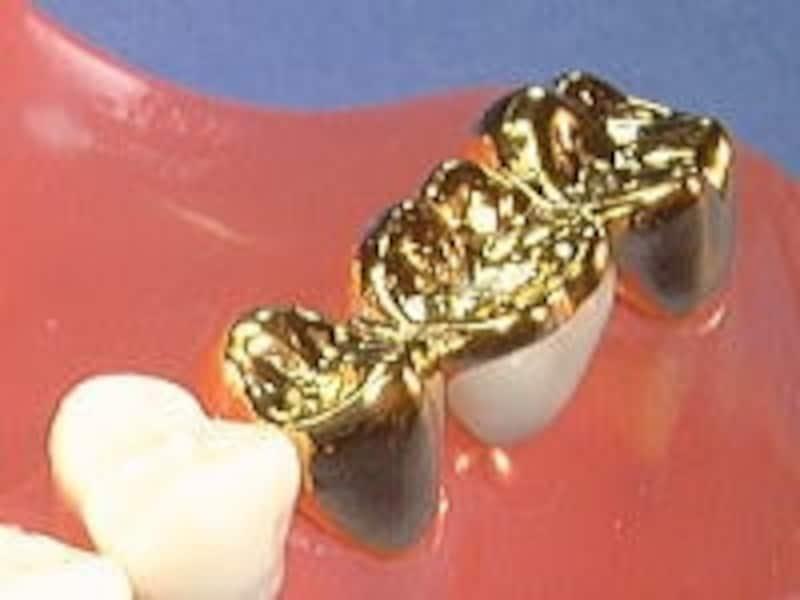歯の金属ブリッジ
