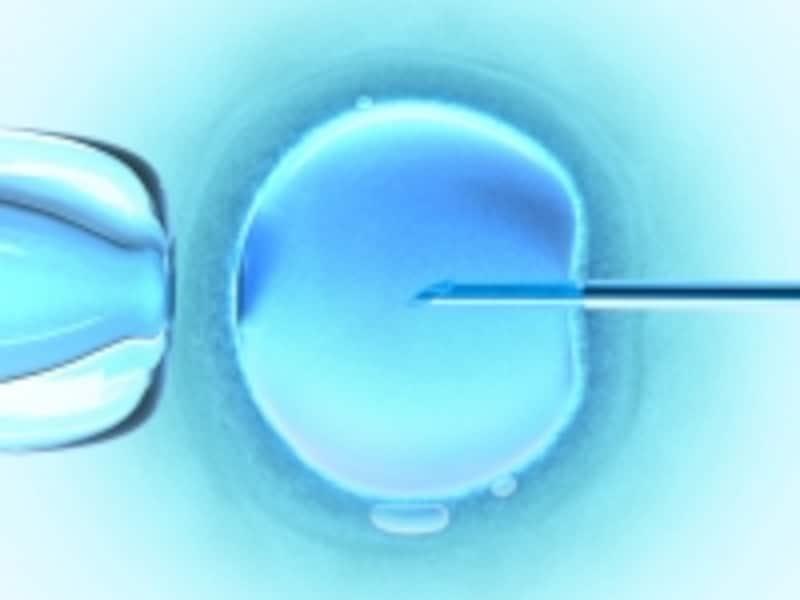 顕微授精(ICSI)の様子です。