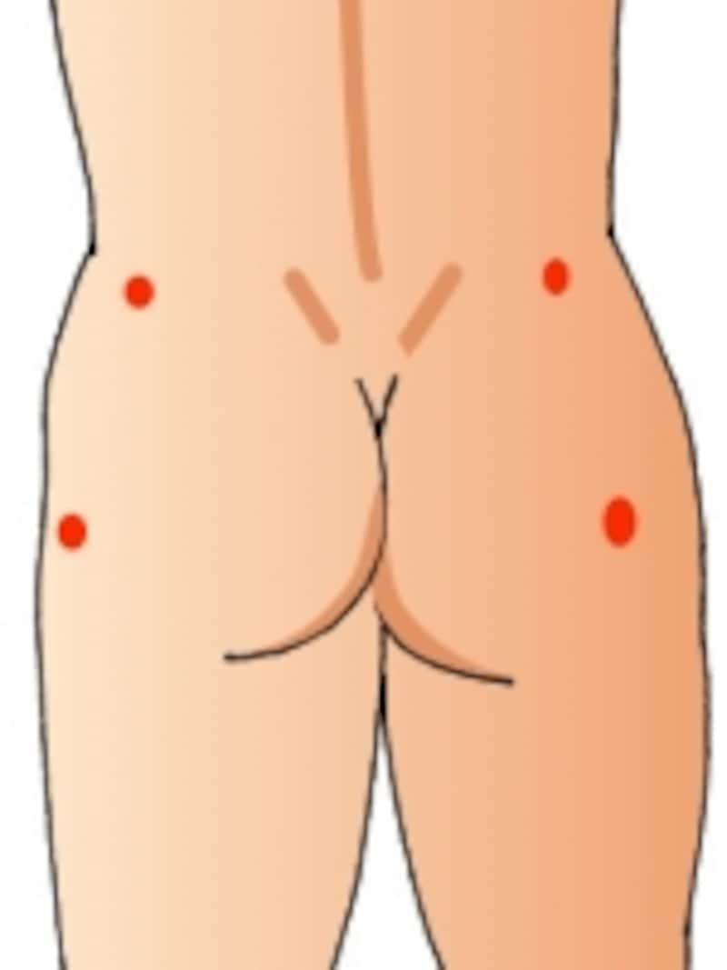 腰のあたりの圧痛点です