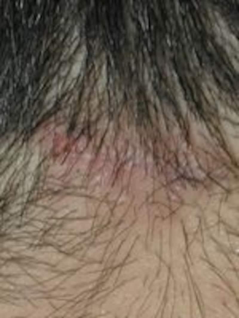 術後2週の傷跡