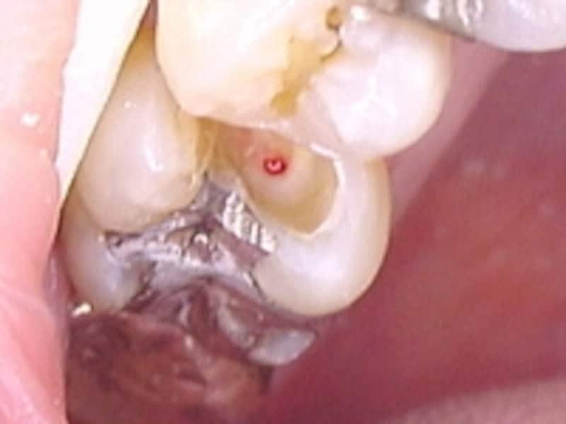 C3虫歯画像