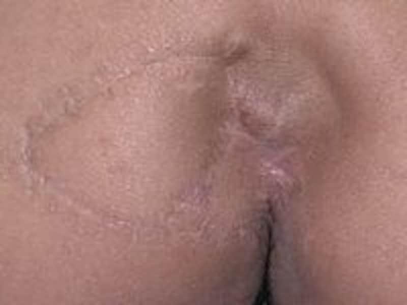 大殿筋筋膜皮弁