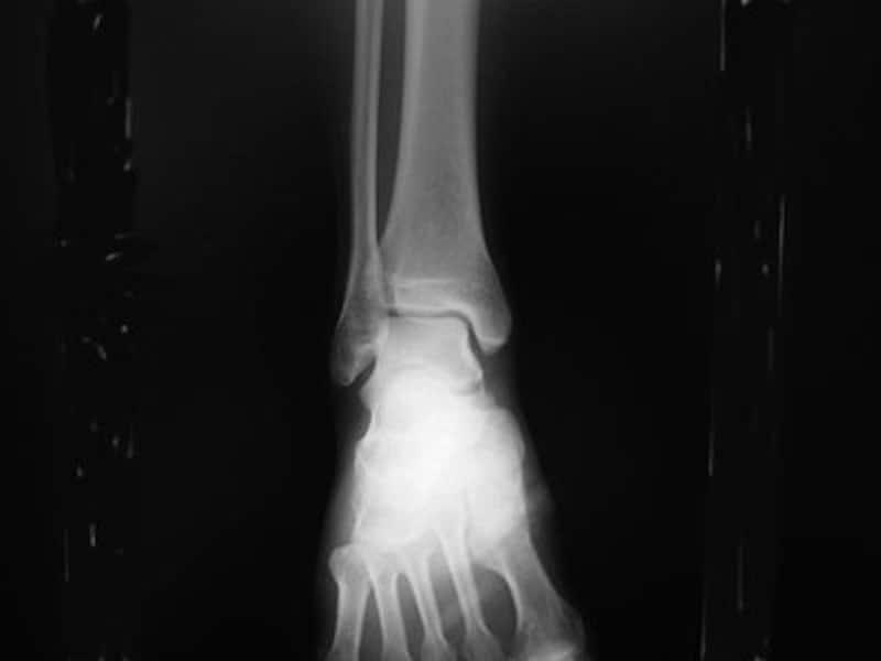 足関節正面