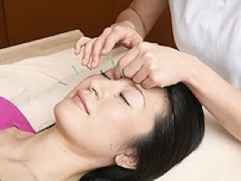 ビースタイルの美容鍼