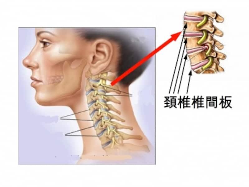 椎間板ヘルニア・頸椎ヘルニア