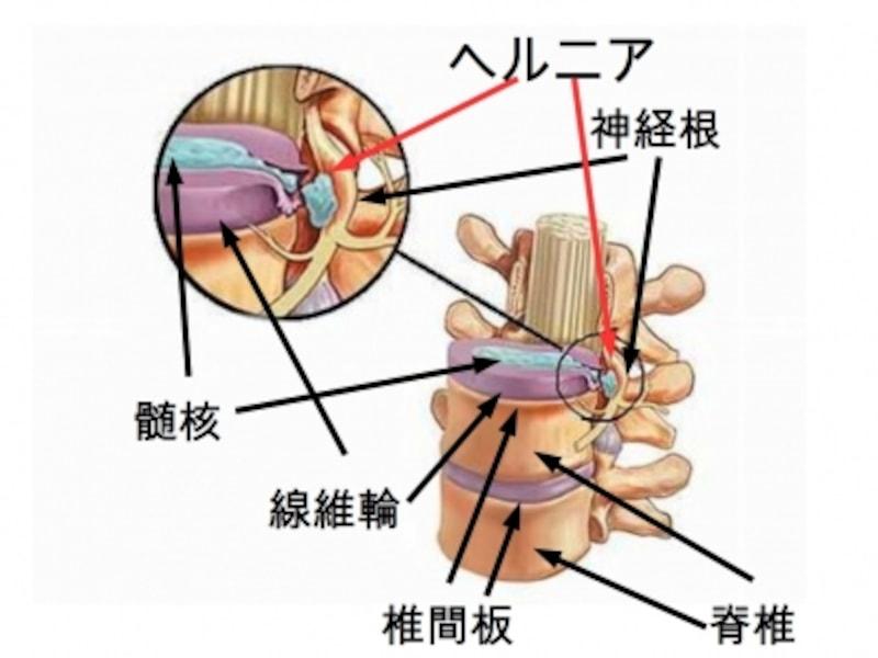 ヘルニア 治癒 頚椎 自然