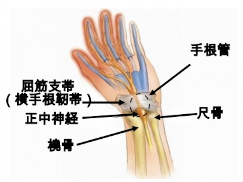 手根管症候群の症状・原因・治療方法