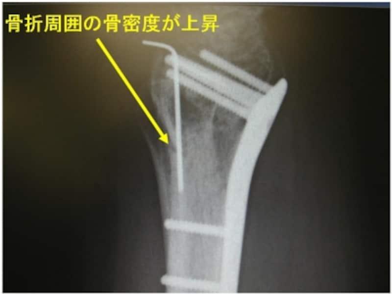 術後半年単純X線像