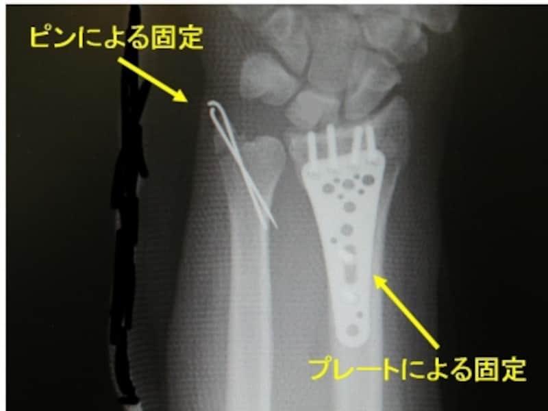術後単純X線像
