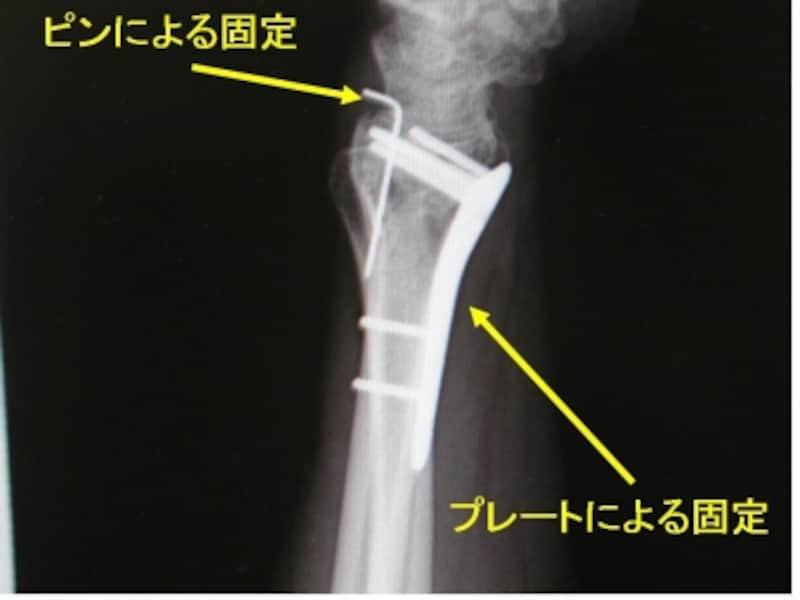 術後単純X線側面像