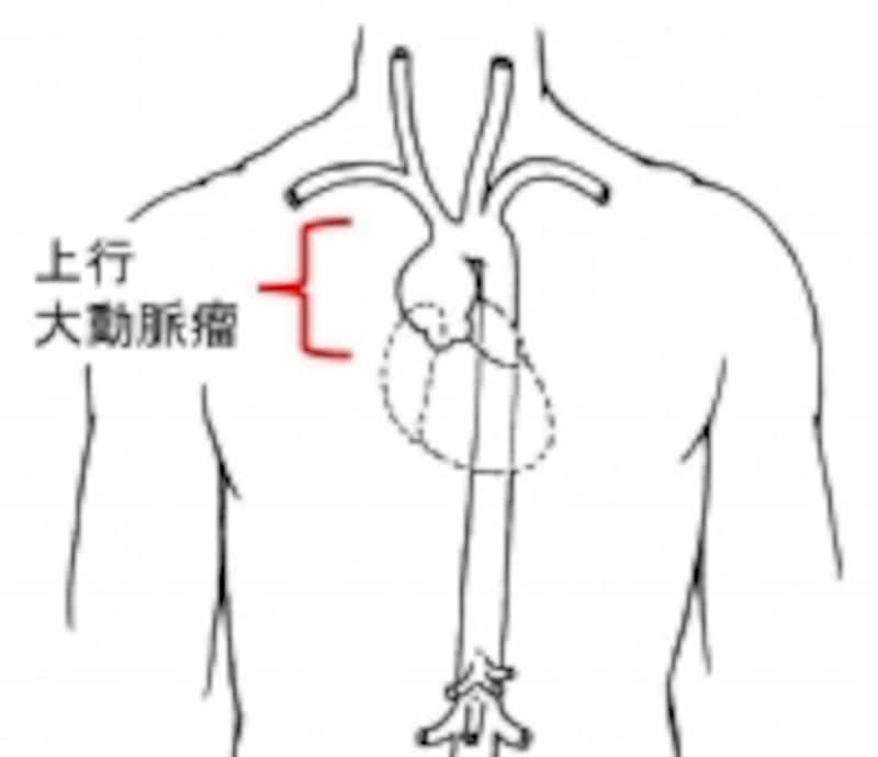 上行大動脈瘤