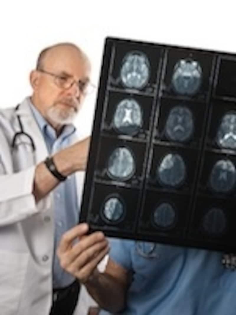 CTやMRIの情報をどう活かすか