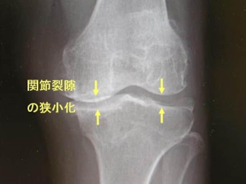 左膝関節単純X線像