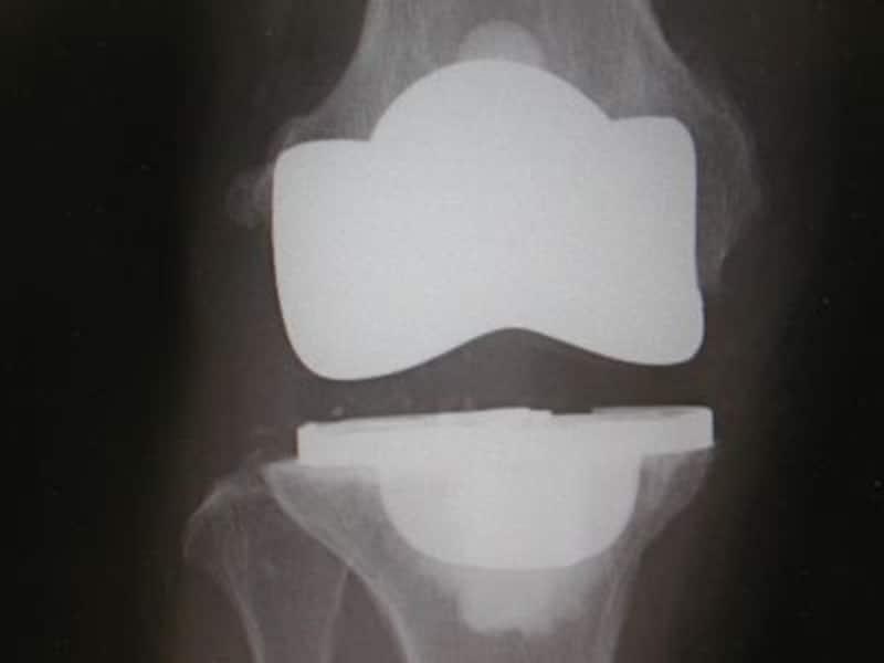 術後膝関節単純X線像