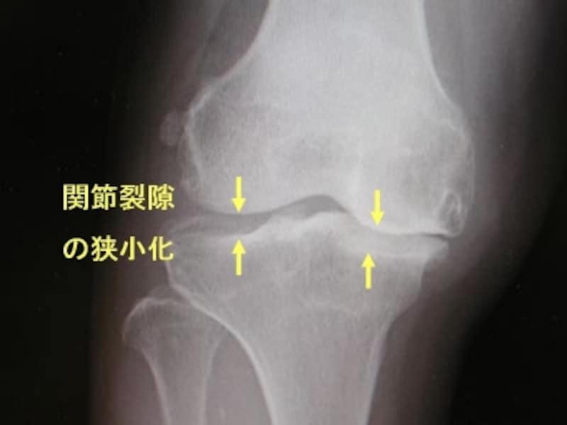右膝関節単純X線像