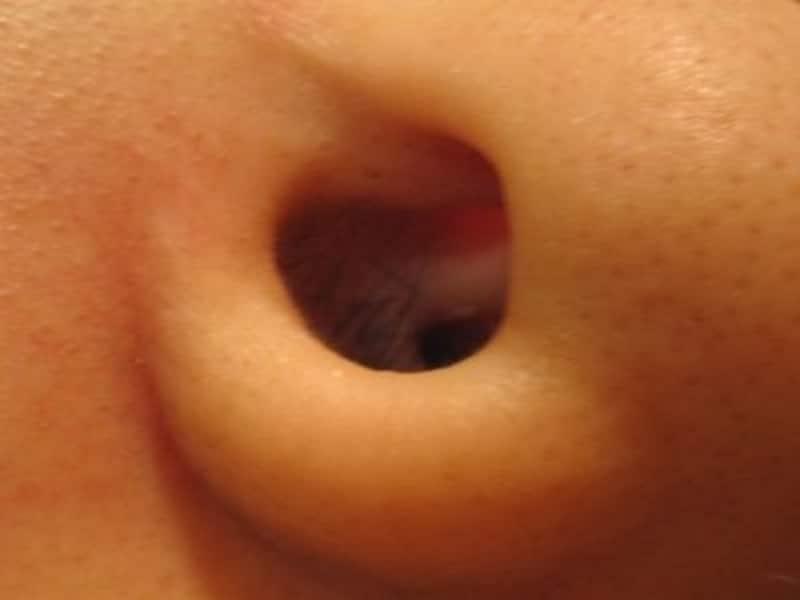鼻毛ビフォア