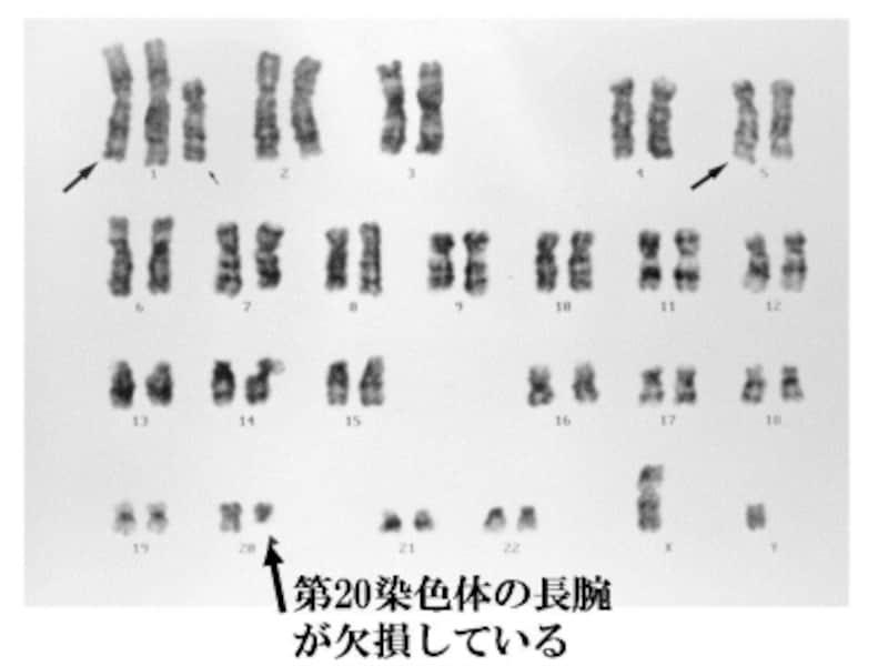 第20染色体