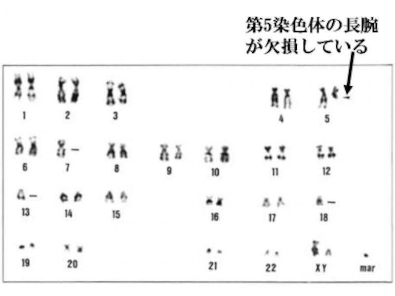 第5染色体