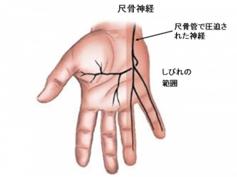 尺骨管症候群でみられるしびれの範囲