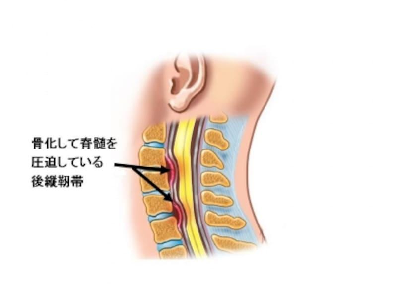 頚椎後縦靭帯骨化症で圧迫される脊髄