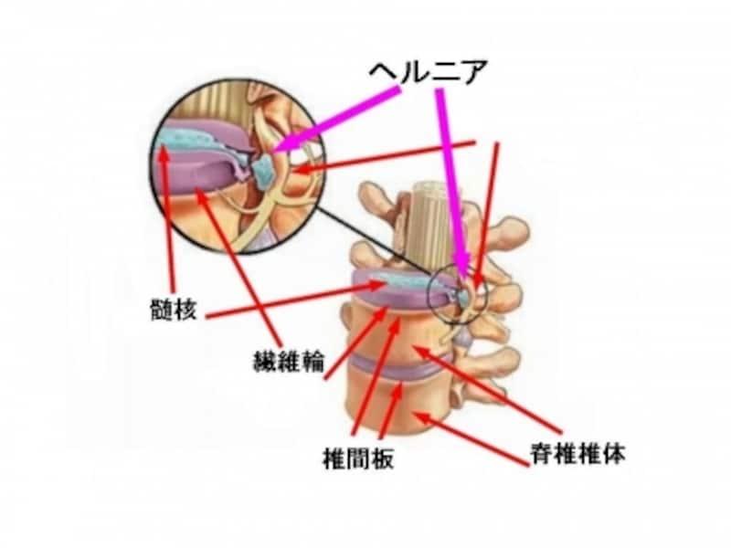頚椎椎間板ヘルニアで圧迫される神経