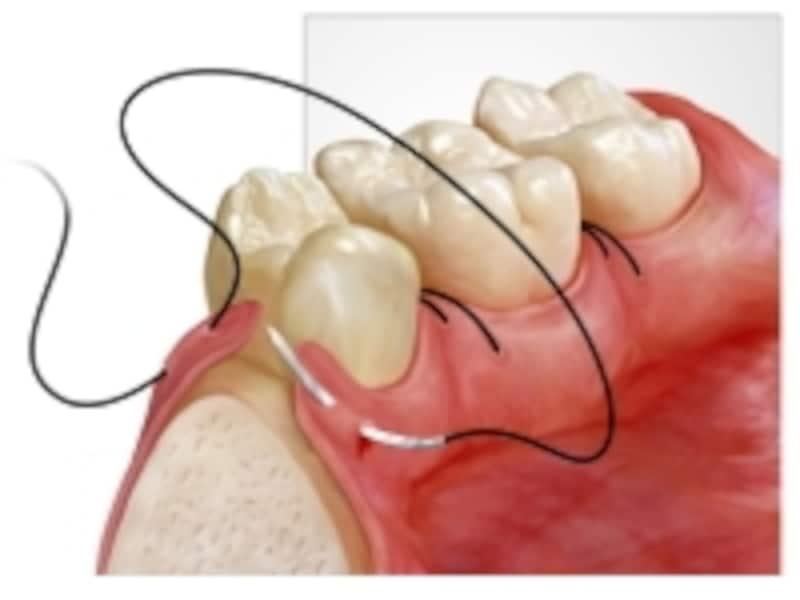 歯ぐきの縫合
