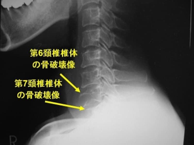 頚椎単純X線側面像