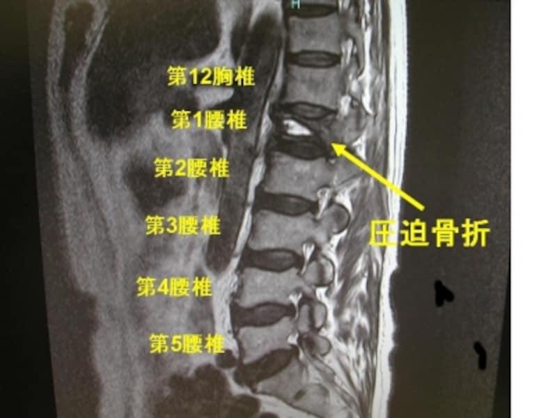 圧迫 後遺症 腰椎 骨折