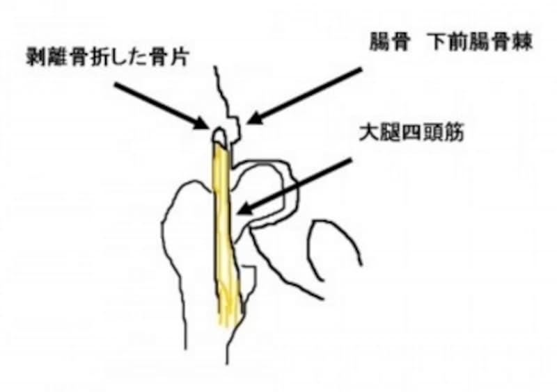 剥離骨折の症状・診断・治療法