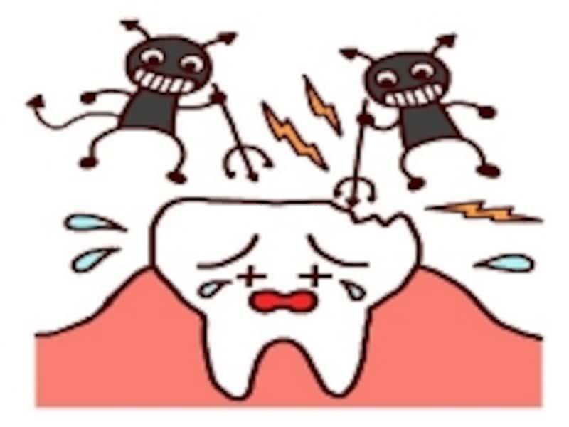 虫歯は悪臭のもと!