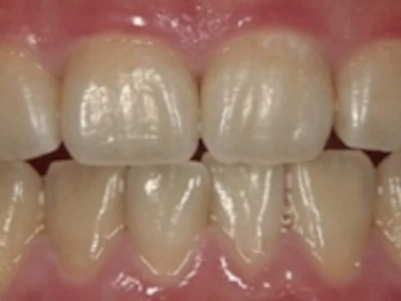 歯の表面を傷つけないで!