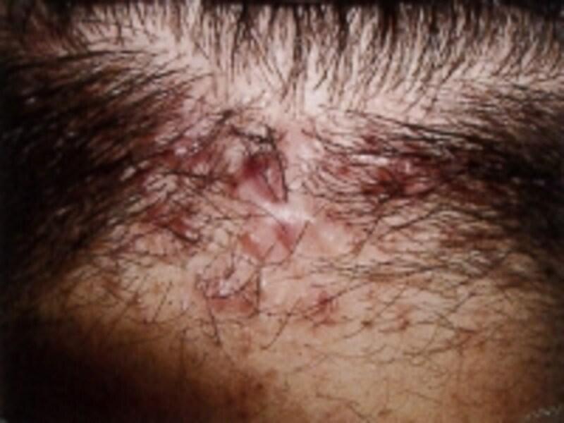 頭皮に発生した紅斑のようす(画像提供:皮膚臨床薬理研究所)
