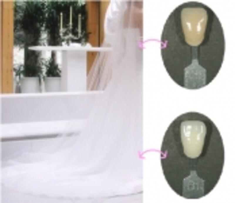 ホワイトニング前後の歯とドレスの色比較