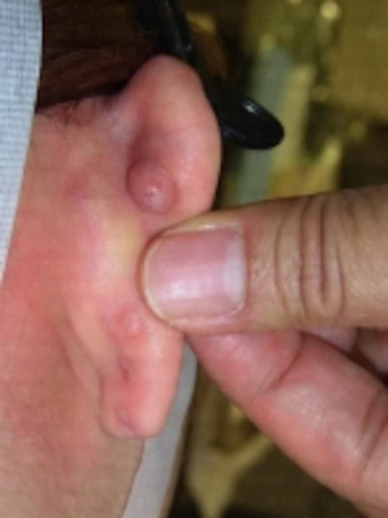 ピアスキャッチ埋没(膨らんだ皮膚の下にピアスキャッチが埋まっている状態)