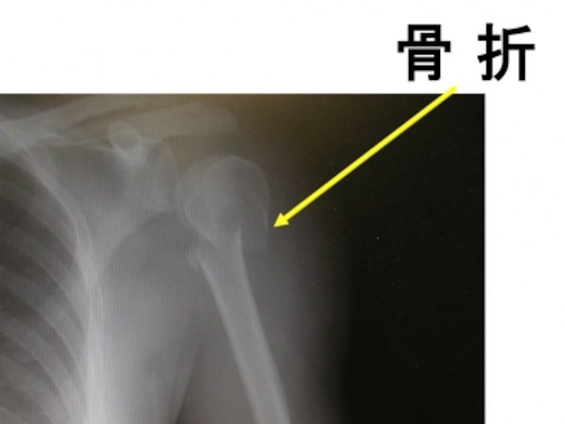 単純X線像。