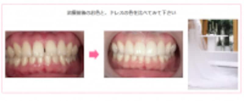 セラミック治療後の歯とドレスの色比較