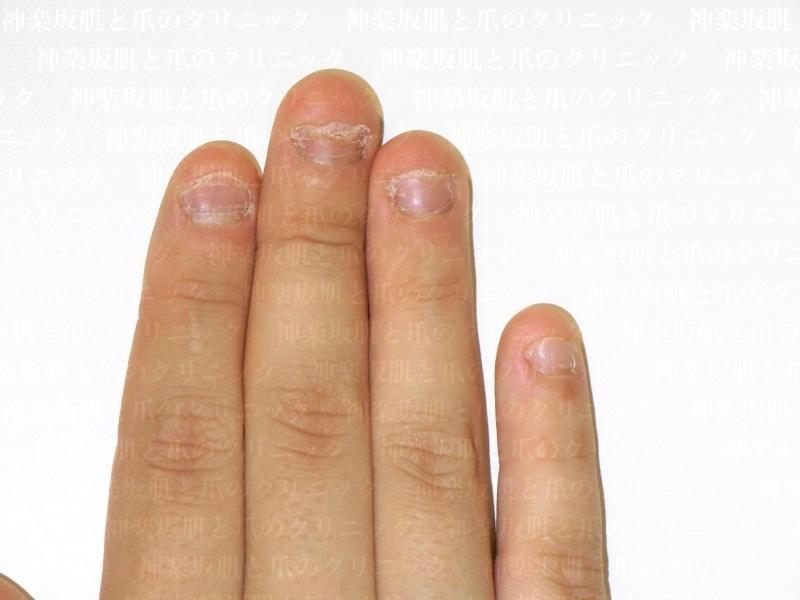 噛み爪の症例写真
