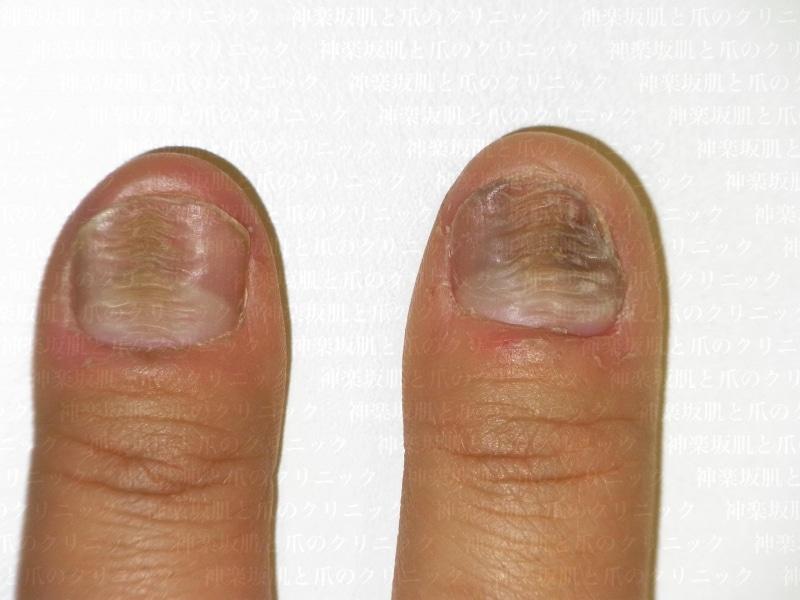 押し爪の症例写真