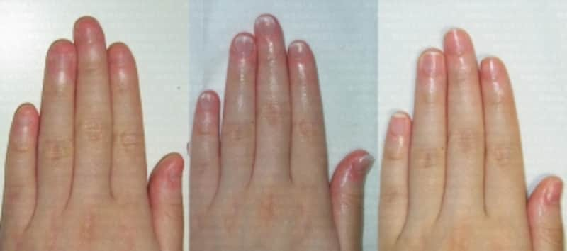 噛み爪施術前中後写真
