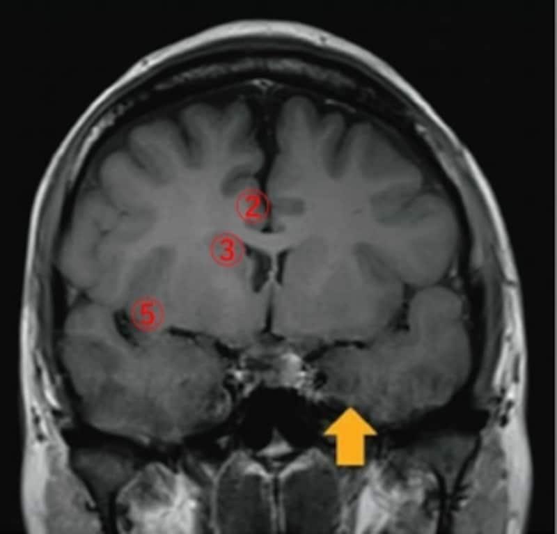 理学療法士国家試験undefined解剖学脳画像