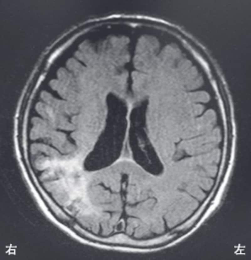 脳血管障害(理学療法士の国試)