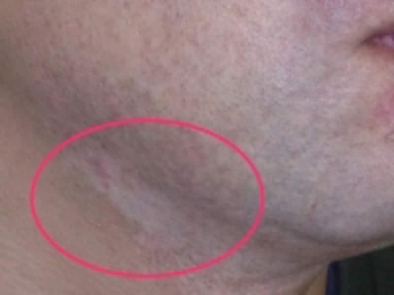 カネボウ化粧品による白斑被害の症例画像