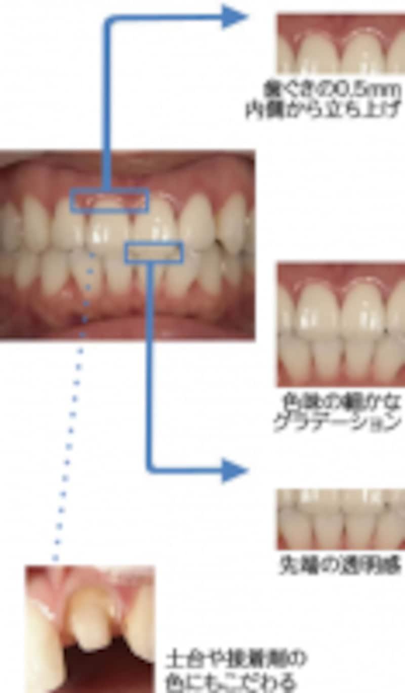 前歯のセラミック治療のポイント
