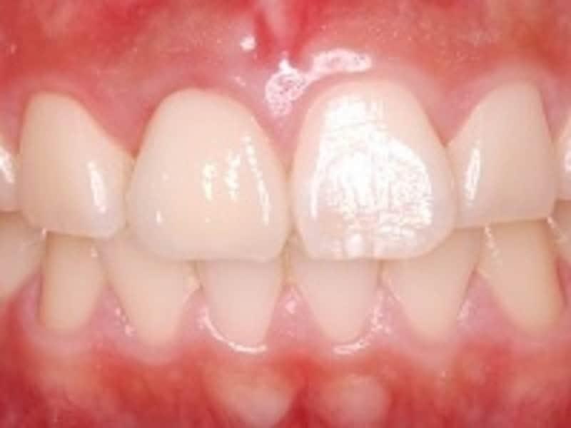 前歯の歯科インプラント治療(術後)