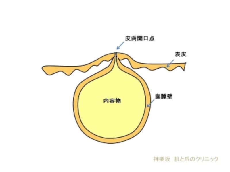 粉瘤断面図