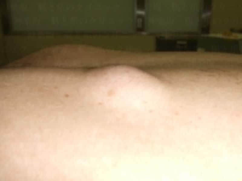 背中の粉瘤