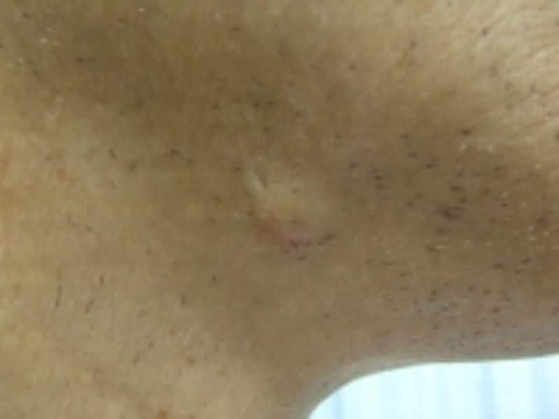 顔(あご)の粉瘤